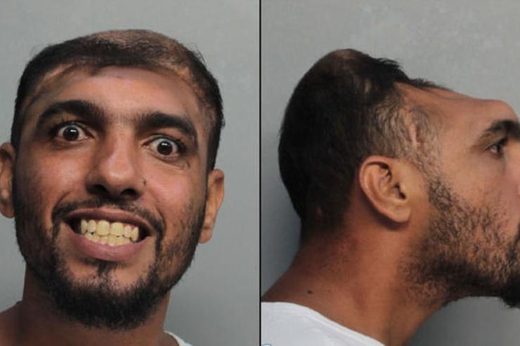 Half-Headed Florida Man