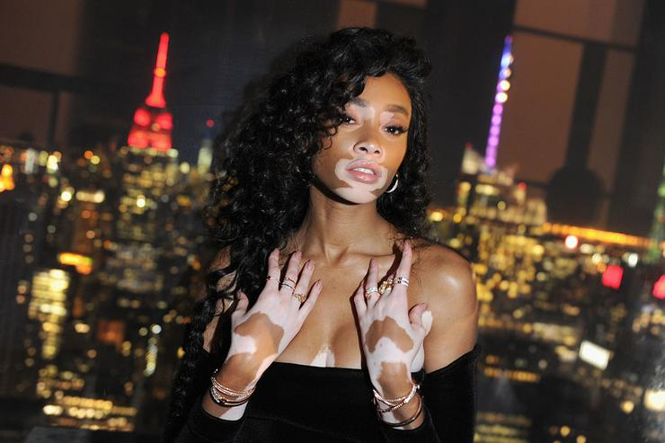 Model Winnie Harlow attends Swarovski #bebrilliant at The Weather Room at the Top of the Rock on May 24, 2016 in New York City.